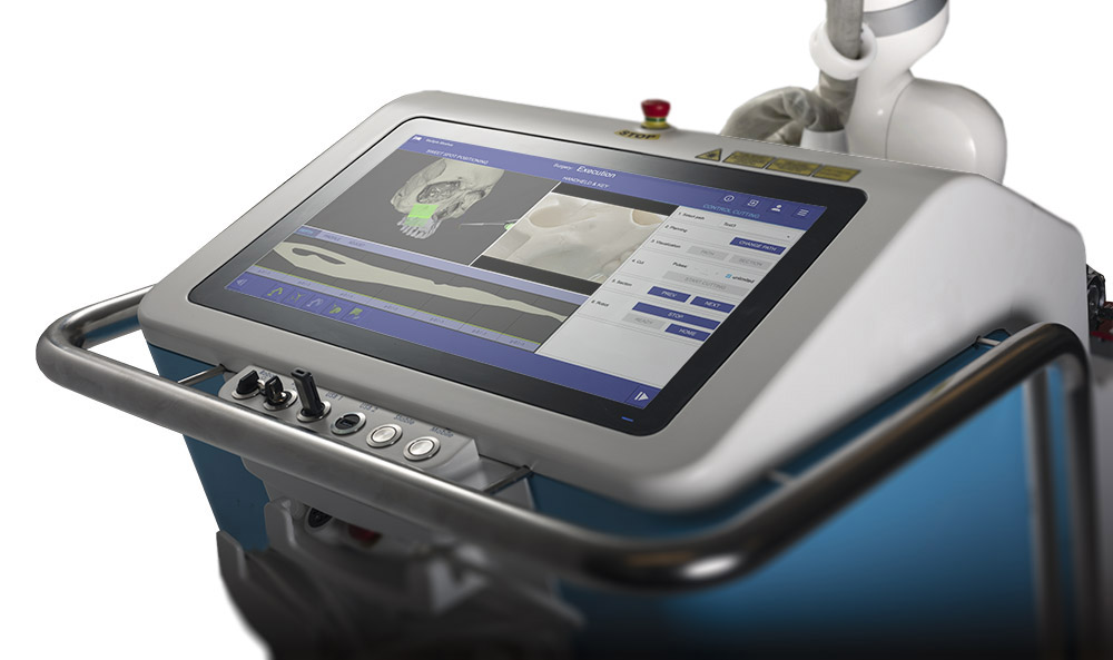 Console of Advanced Osteotomy Tools' surgical robot CARLO®